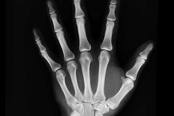 Black and white x-ray of human hand